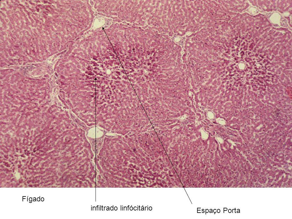 Fígado infiltrado linfócitário Espaço Porta