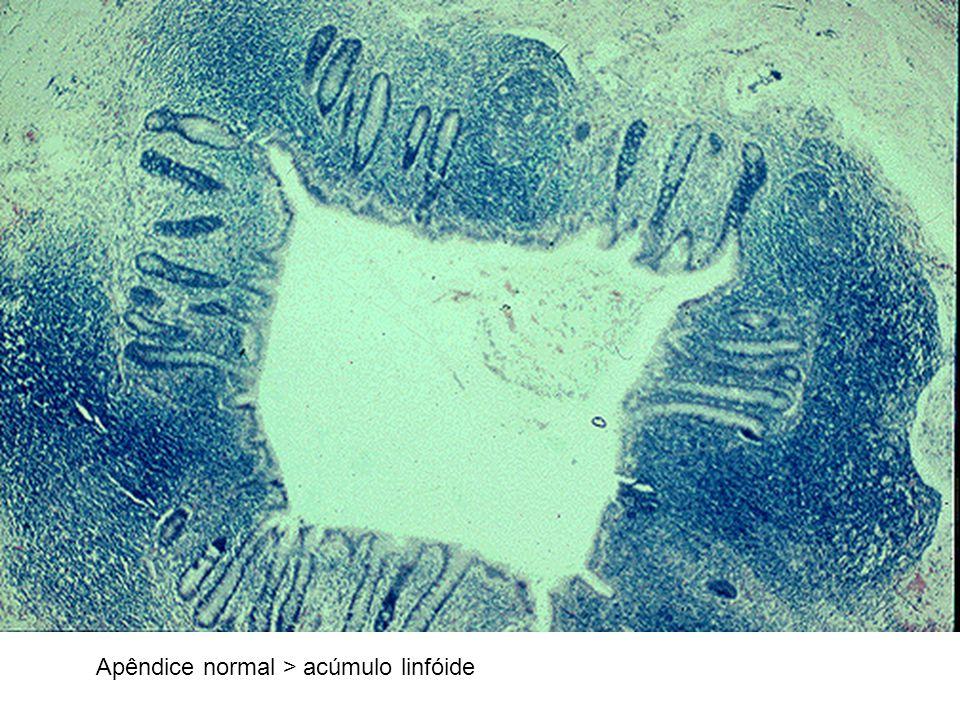 Apêndice normal > acúmulo linfóide