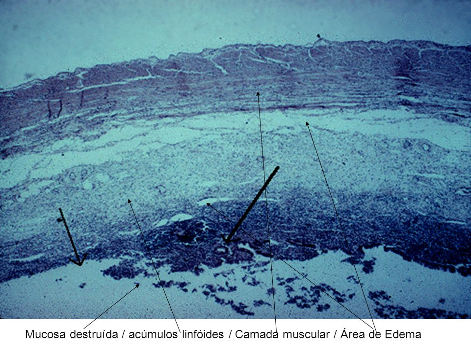 Mucosa destruída / acúmulos linfóides / Camada muscular / Área de Edema