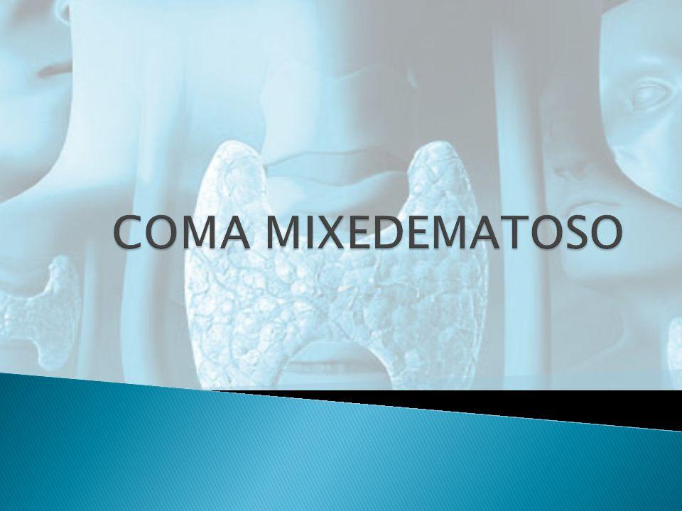 COMA MIXEDEMATOSO