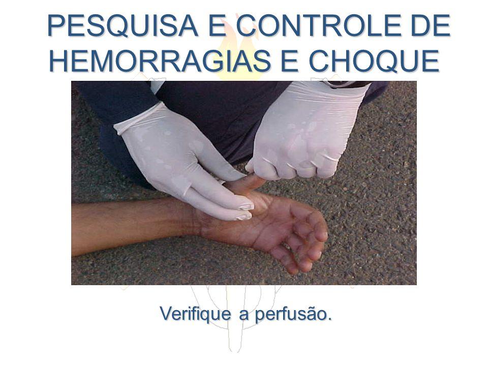 PESQUISA E CONTROLE DE HEMORRAGIAS E CHOQUE