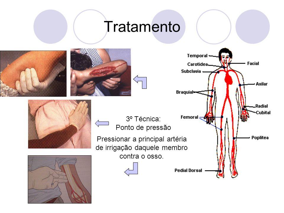Tratamento 3º Técnica: Ponto de pressão Pressionar a principal artéria