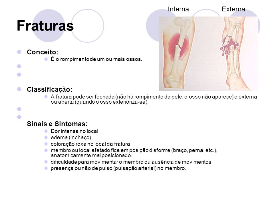 Fraturas Interna Externa Conceito: Classificação: Sinais e Sintomas: