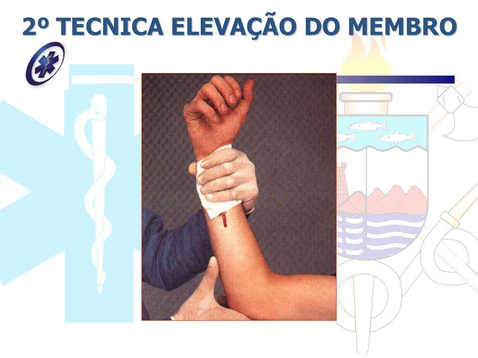 2º TECNICA ELEVAÇÃO DO MEMBRO