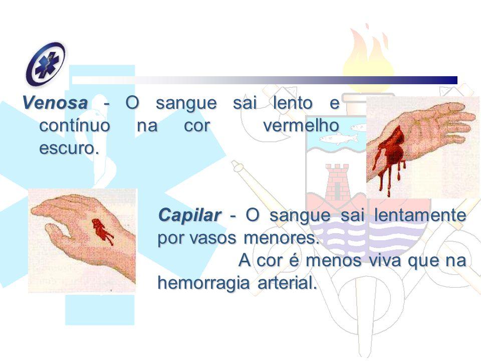 Venosa - O sangue sai lento e contínuo na cor vermelho escuro.