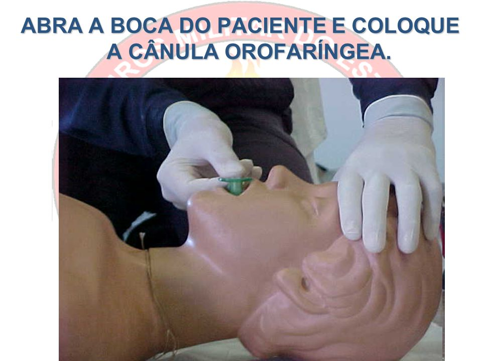 ABRA A BOCA DO PACIENTE E COLOQUE A CÂNULA OROFARÍNGEA.