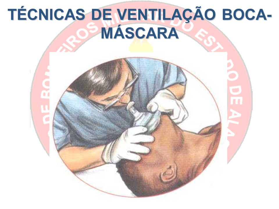 TÉCNICAS DE VENTILAÇÃO BOCA-MÁSCARA