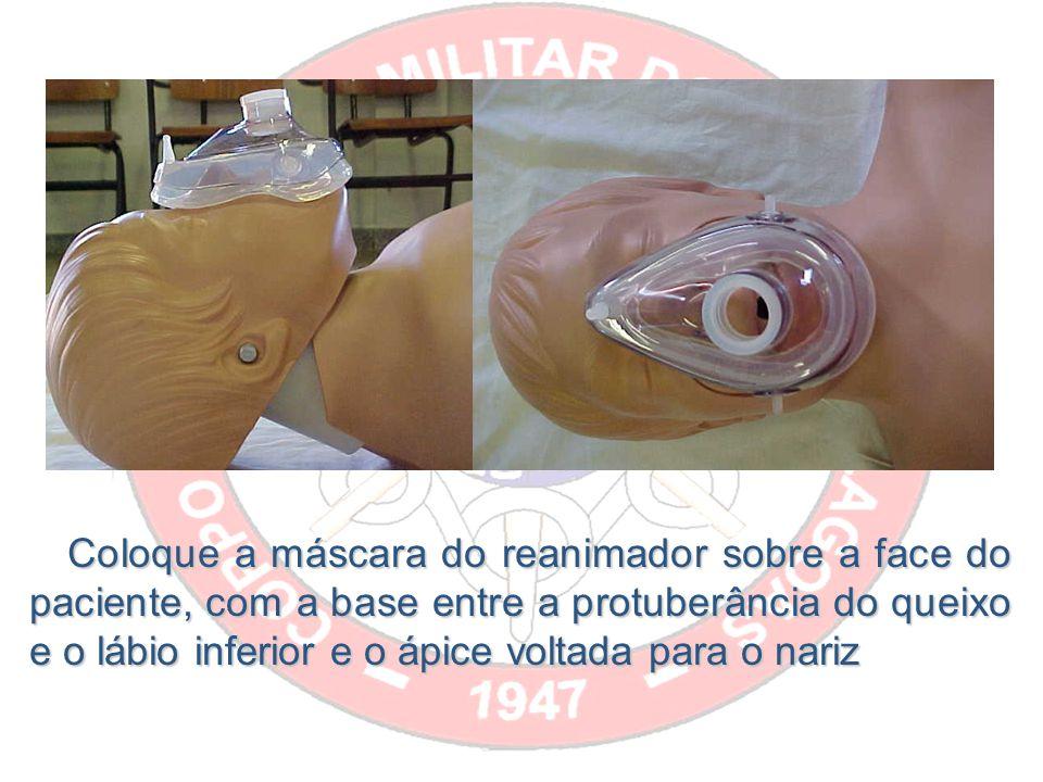 Coloque a máscara do reanimador sobre a face do paciente, com a base entre a protuberância do queixo e o lábio inferior e o ápice voltada para o nariz