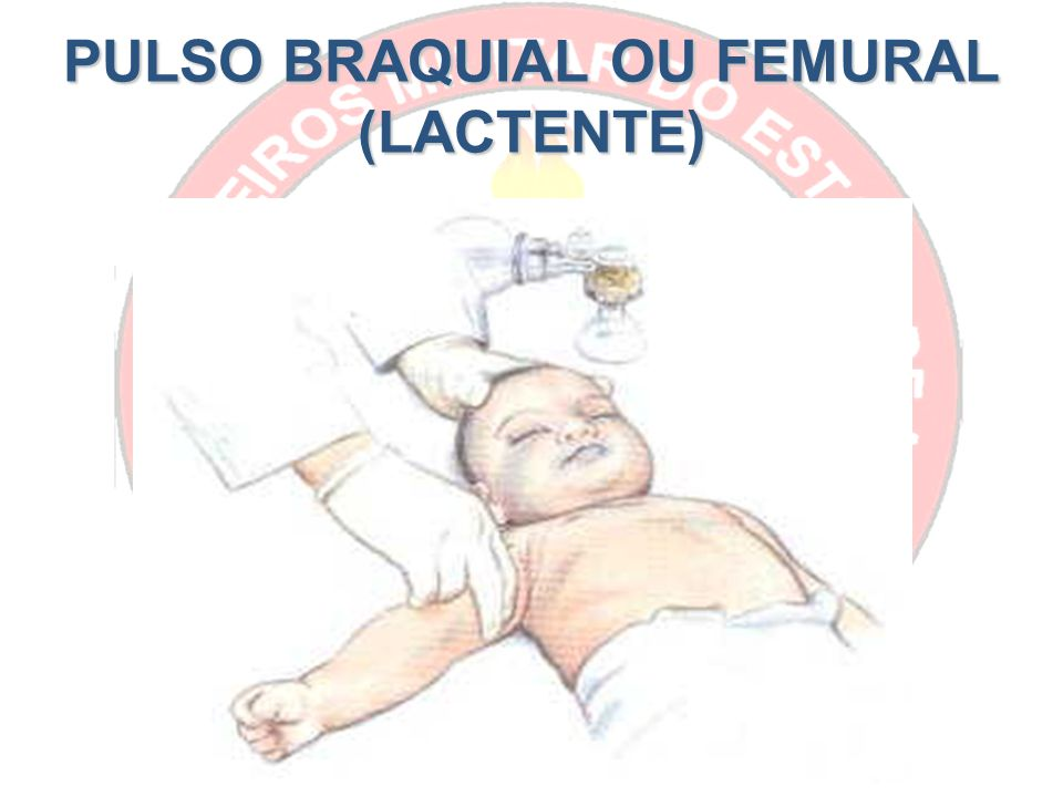 PULSO BRAQUIAL OU FEMURAL (LACTENTE)