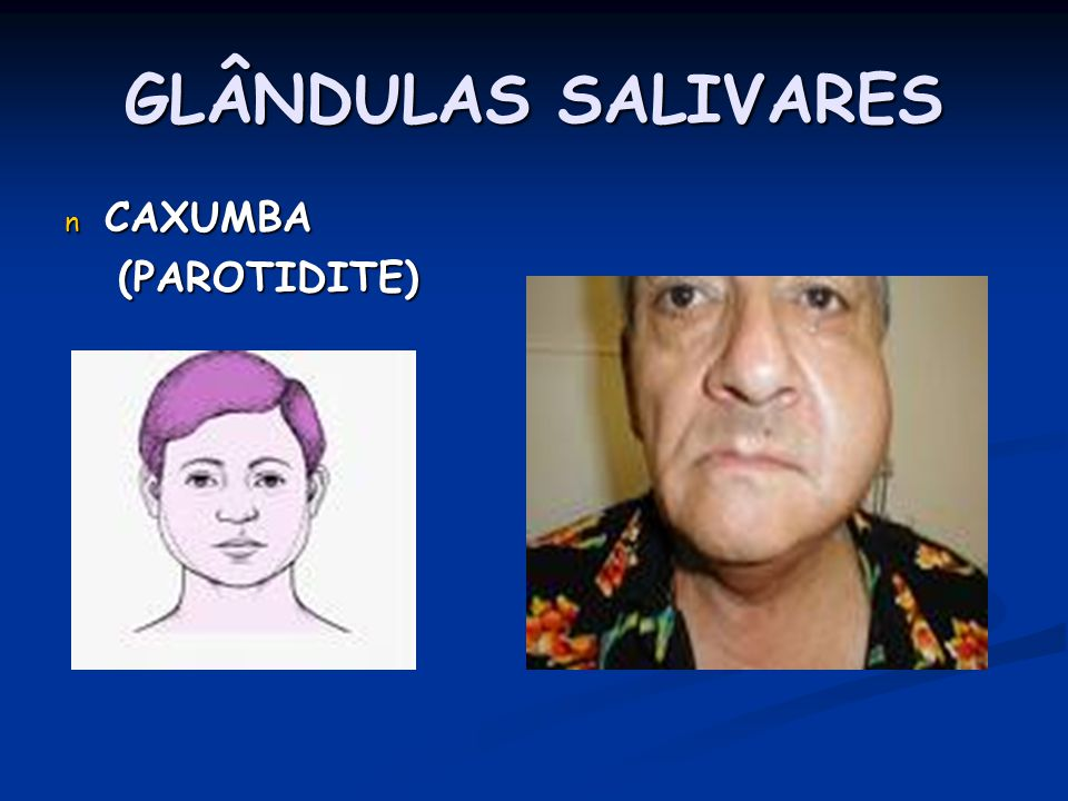 GLÂNDULAS SALIVARES CAXUMBA (PAROTIDITE)