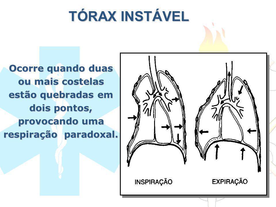 TÓRAX INSTÁVEL Ocorre quando duas ou mais costelas estão quebradas em dois pontos, provocando uma respiração paradoxal.