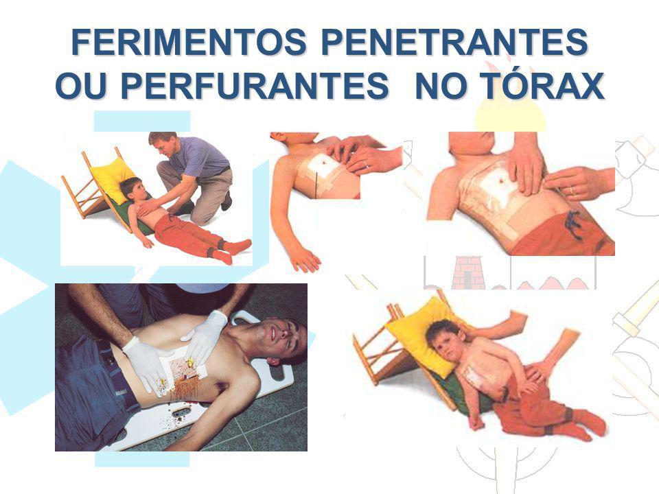 FERIMENTOS PENETRANTES OU PERFURANTES NO TÓRAX