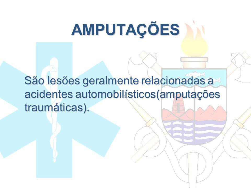 AMPUTAÇÕES São lesões geralmente relacionadas a acidentes automobilísticos(amputações traumáticas).