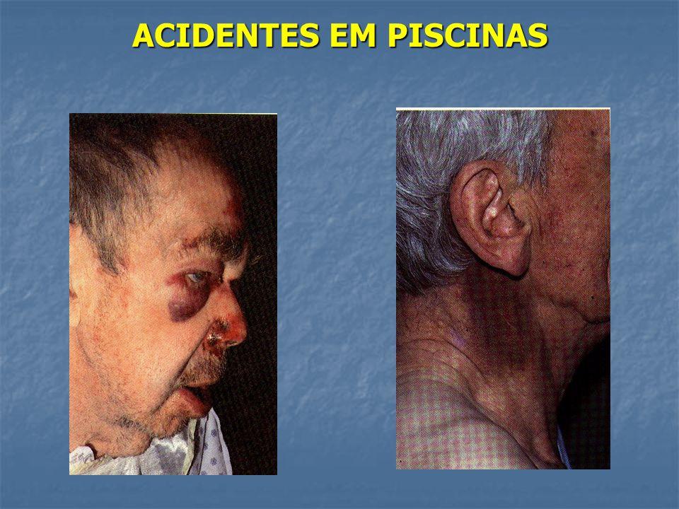 ACIDENTES EM PISCINAS