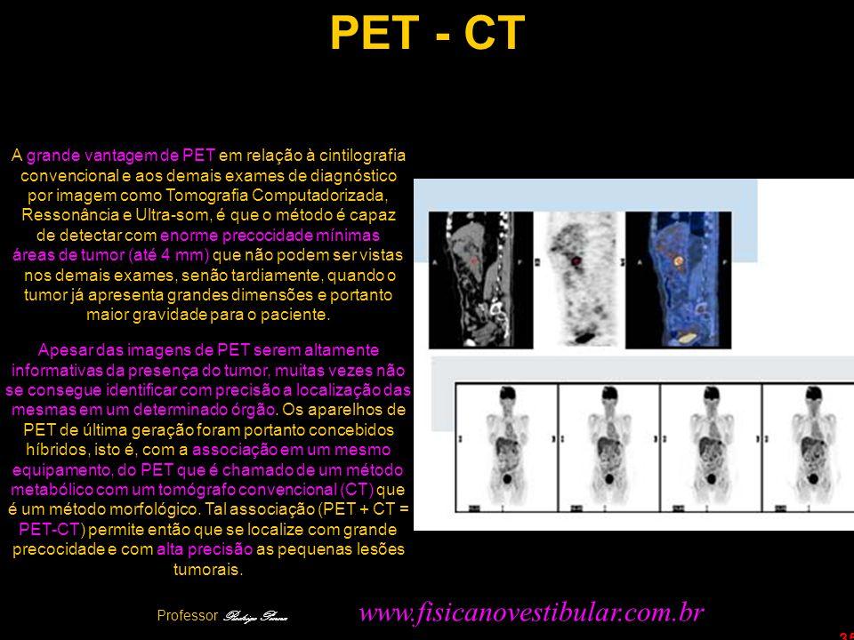 PET - CT A grande vantagem de PET em relação à cintilografia