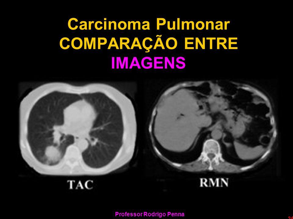 Carcinoma Pulmonar COMPARAÇÃO ENTRE IMAGENS