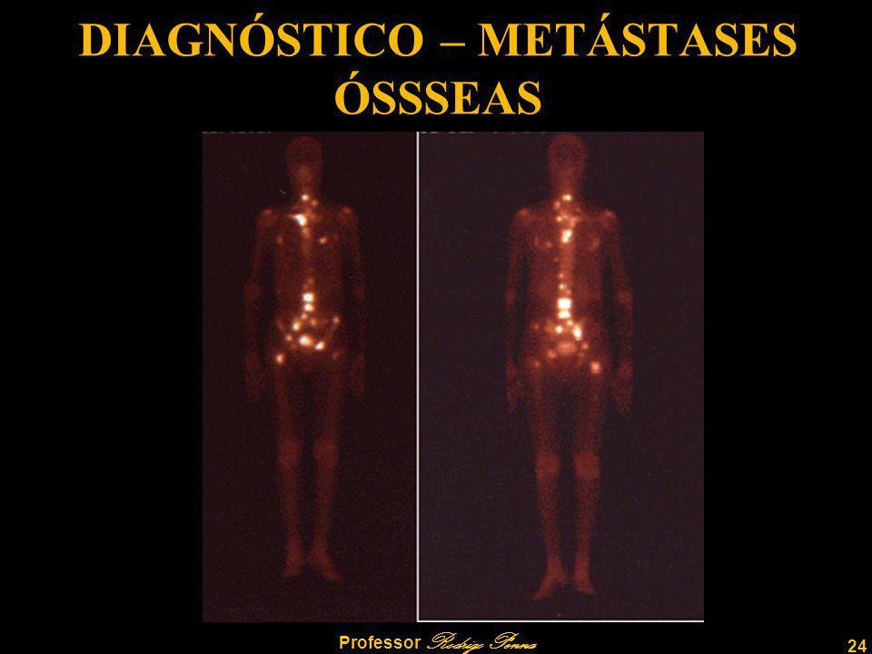 DIAGNÓSTICO – METÁSTASES ÓSSSEAS