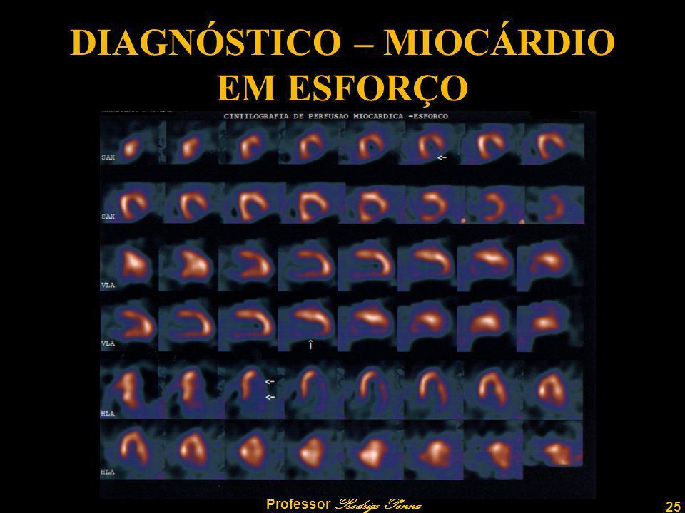 DIAGNÓSTICO – MIOCÁRDIO EM ESFORÇO