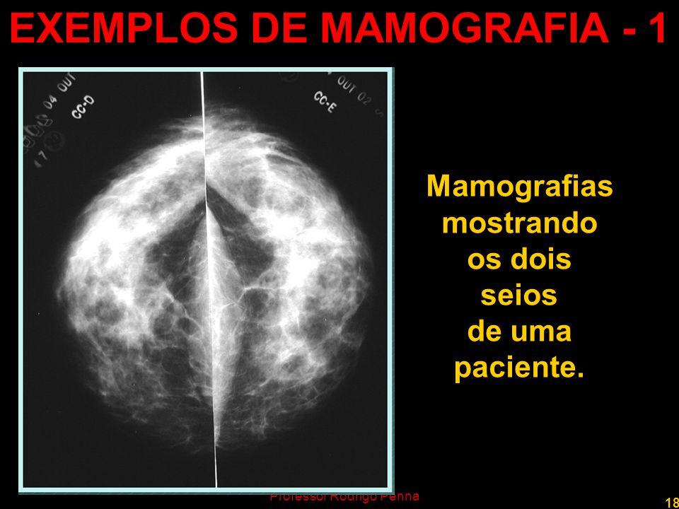 EXEMPLOS DE MAMOGRAFIA - 1