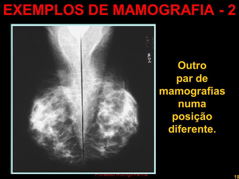 EXEMPLOS DE MAMOGRAFIA - 2