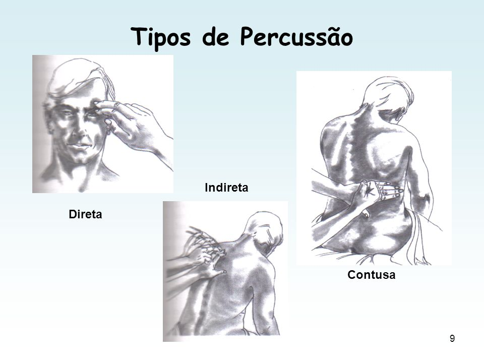 Tipos de Percussão Indireta Direta Contusa