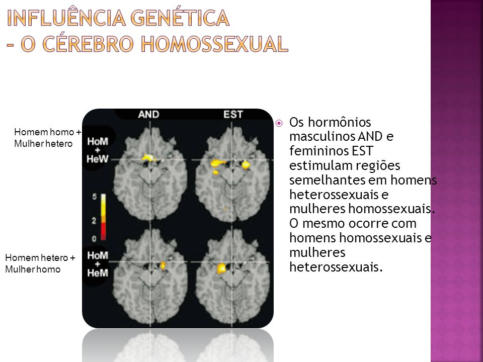 Influência genética – o cérebro homossexual