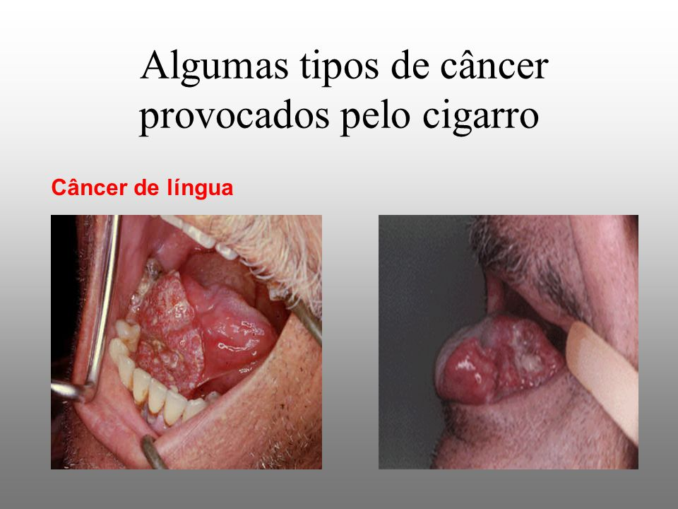 Algumas tipos de câncer provocados pelo cigarro