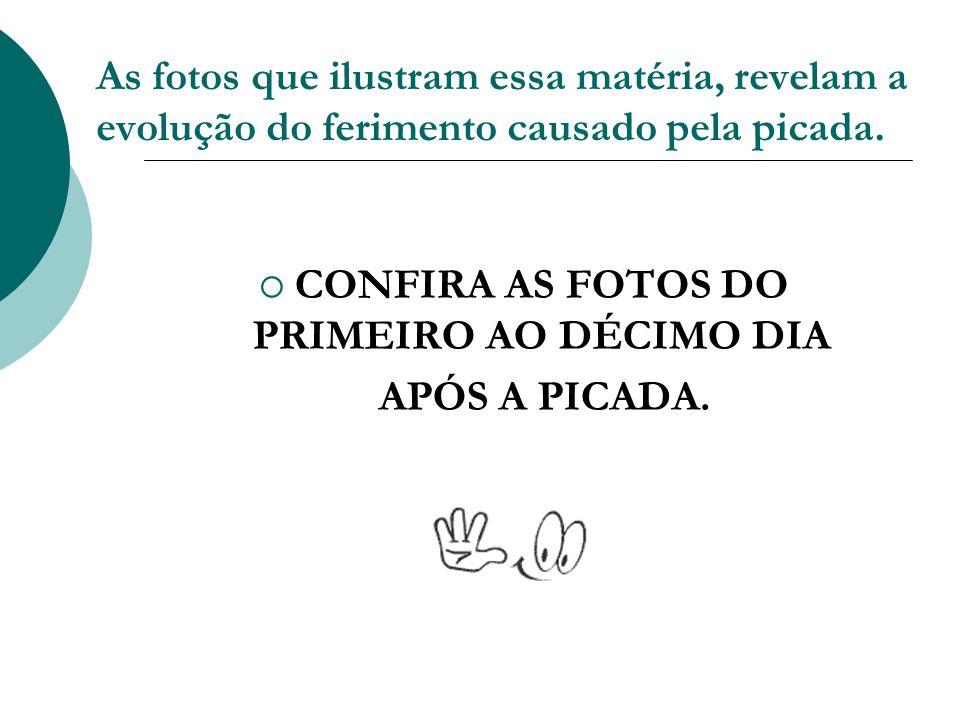 CONFIRA AS FOTOS DO PRIMEIRO AO DÉCIMO DIA
