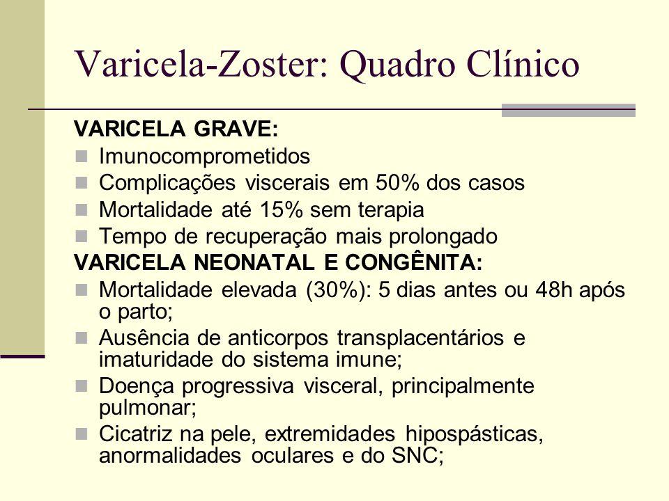 Varicela-Zoster: Quadro Clínico