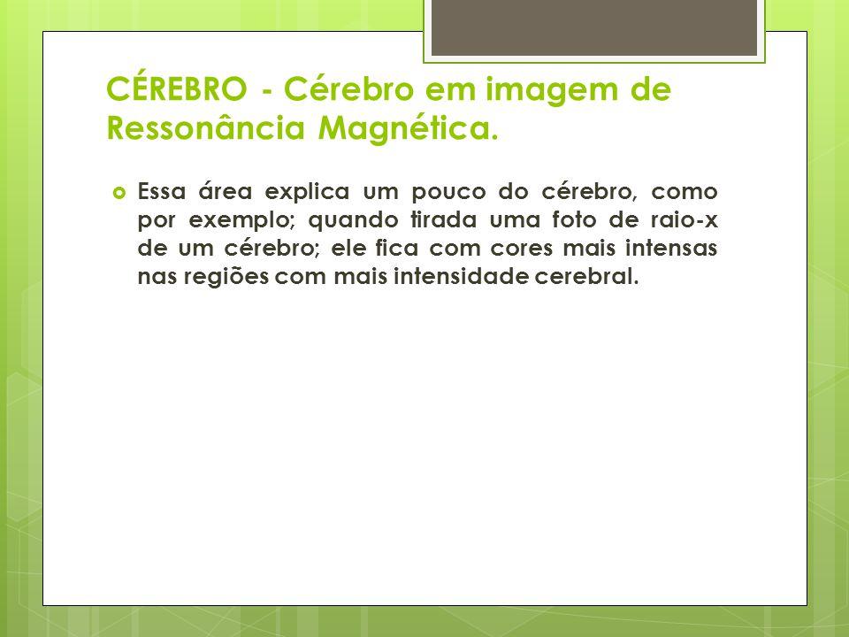 CÉREBRO - Cérebro em imagem de Ressonância Magnética.