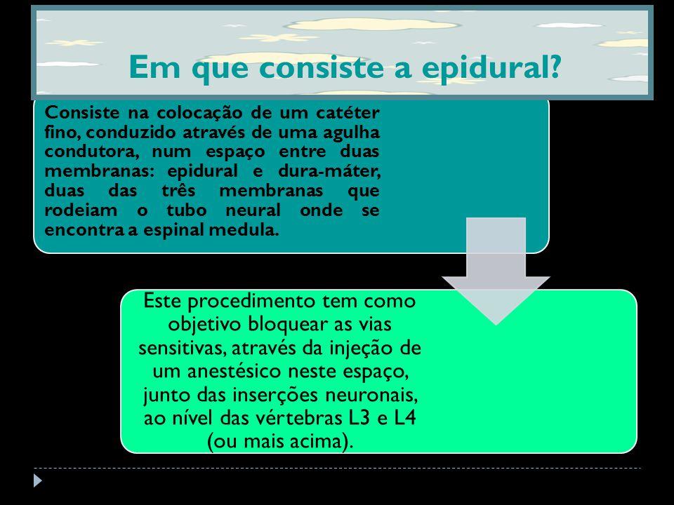 Em que consiste a epidural