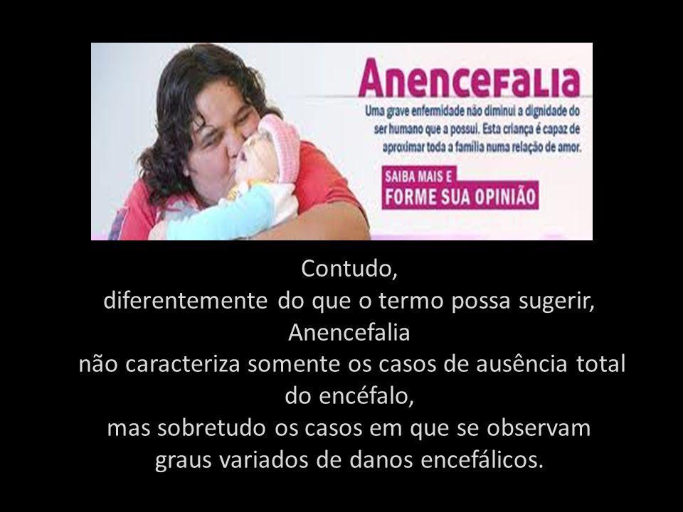 diferentemente do que o termo possa sugerir, Anencefalia