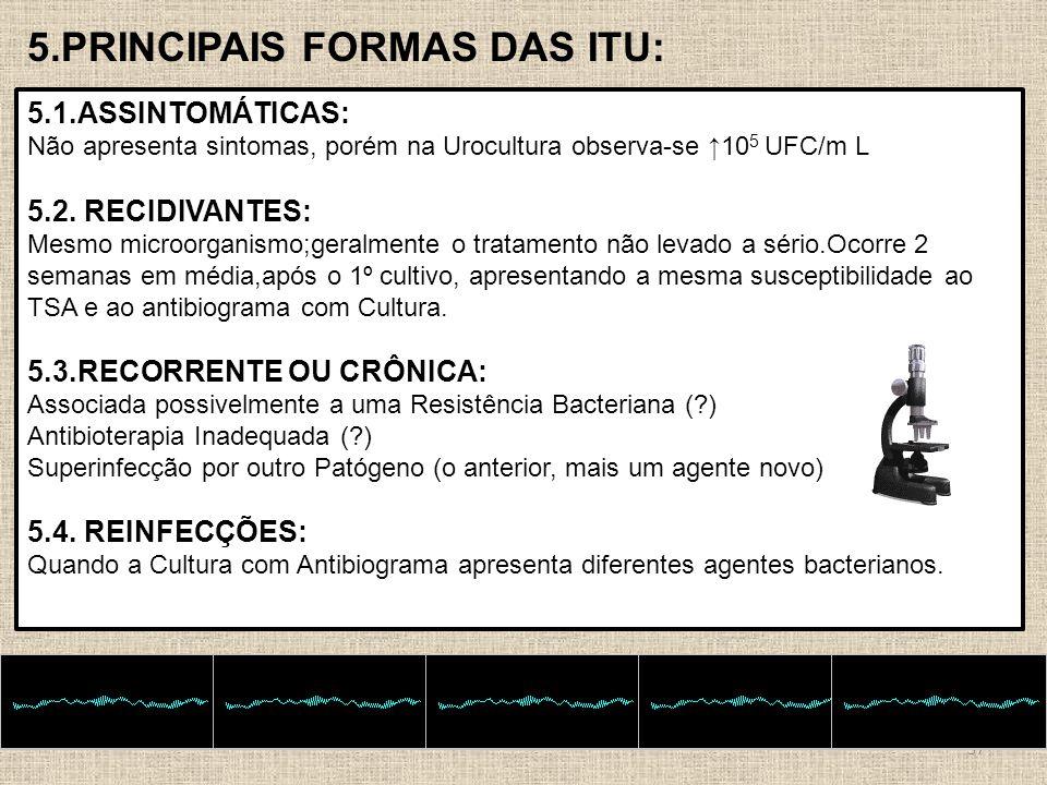 5.PRINCIPAIS FORMAS DAS ITU: