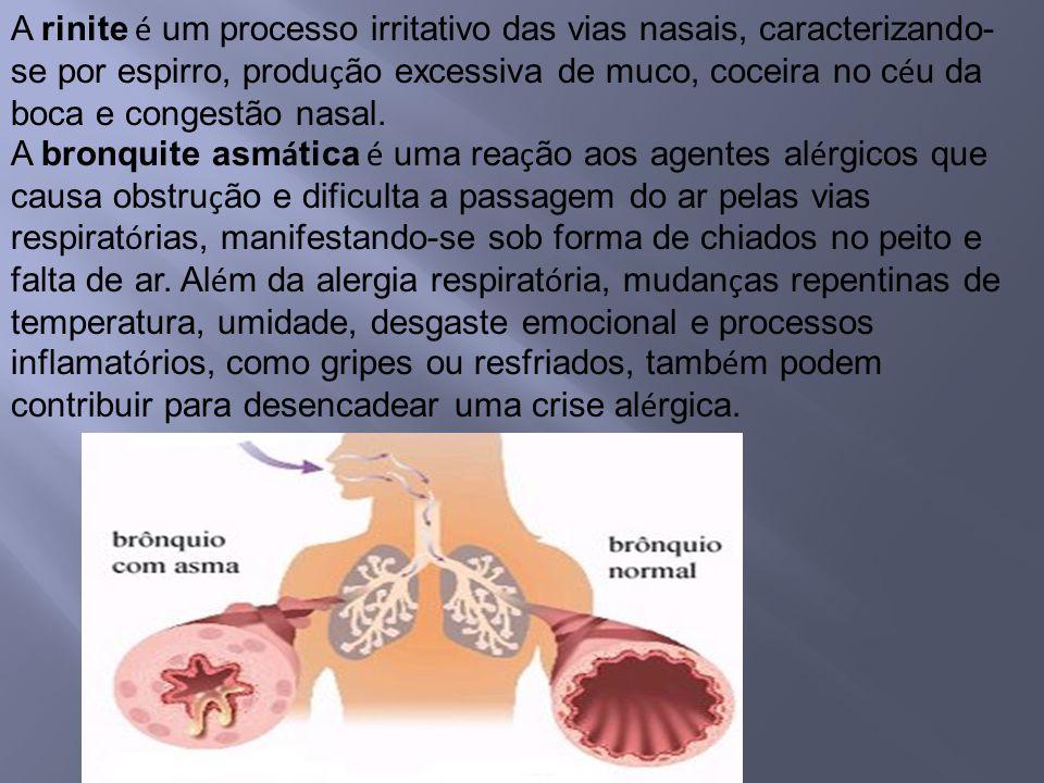 A rinite é um processo irritativo das vias nasais, caracterizando-se por espirro, produção excessiva de muco, coceira no céu da boca e congestão nasal.