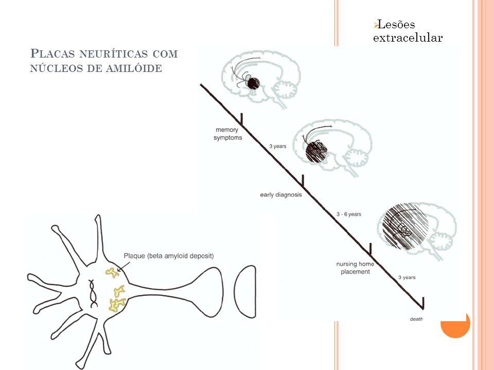 Placas neuríticas com núcleos de amilóide