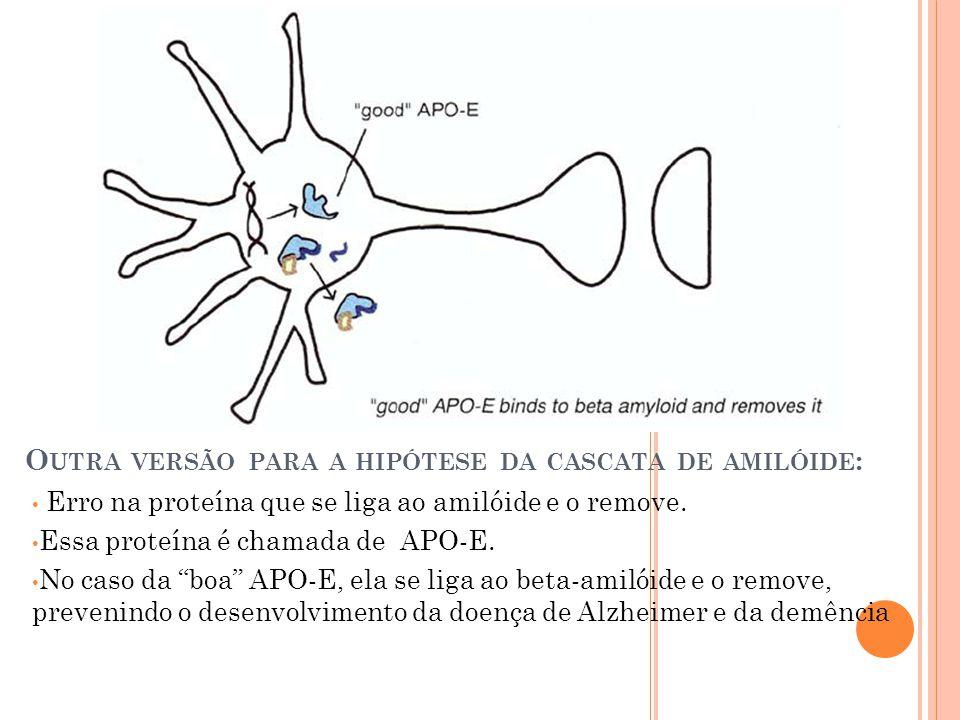Outra versão para a hipótese da cascata de amilóide: