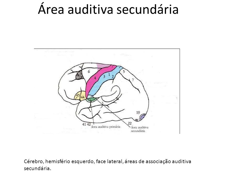 Área auditiva secundária