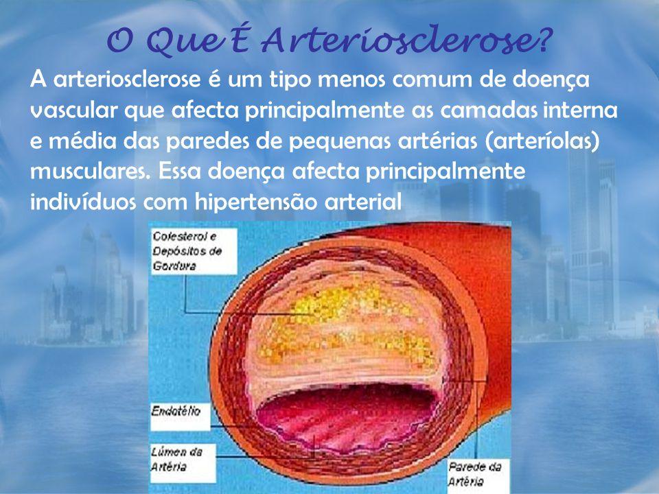 O Que É Arteriosclerose