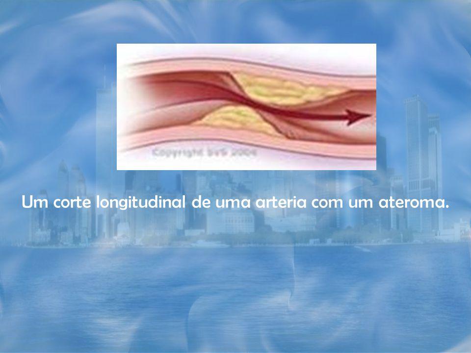 Um corte longitudinal de uma arteria com um ateroma.