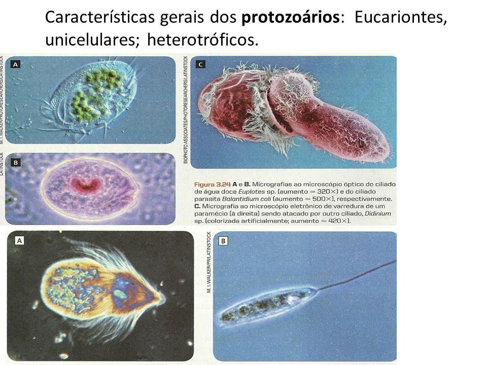 Características gerais dos protozoários: Eucariontes, unicelulares; heterotróficos.