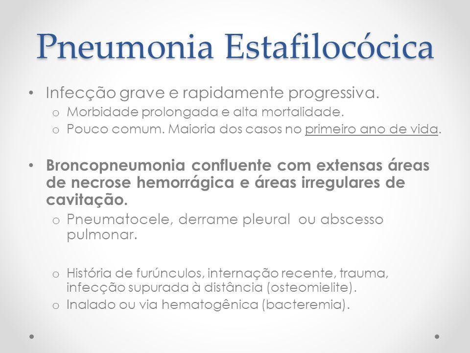 Pneumonia Estafilocócica