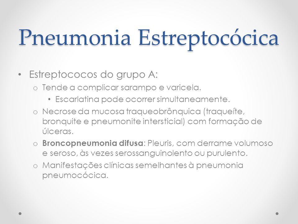Pneumonia Estreptocócica