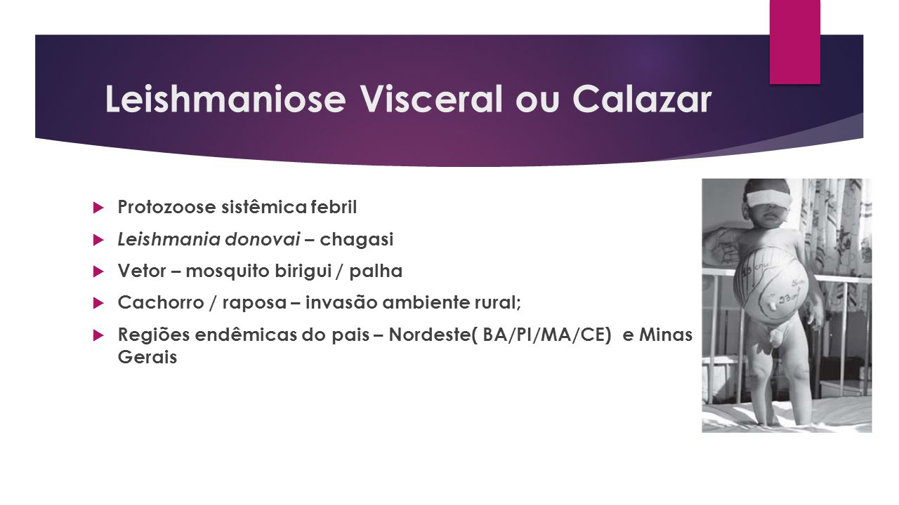 Leishmaniose Visceral ou Calazar