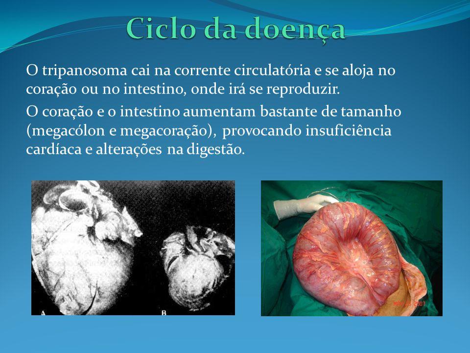 Ciclo da doença O tripanosoma cai na corrente circulatória e se aloja no coração ou no intestino, onde irá se reproduzir.