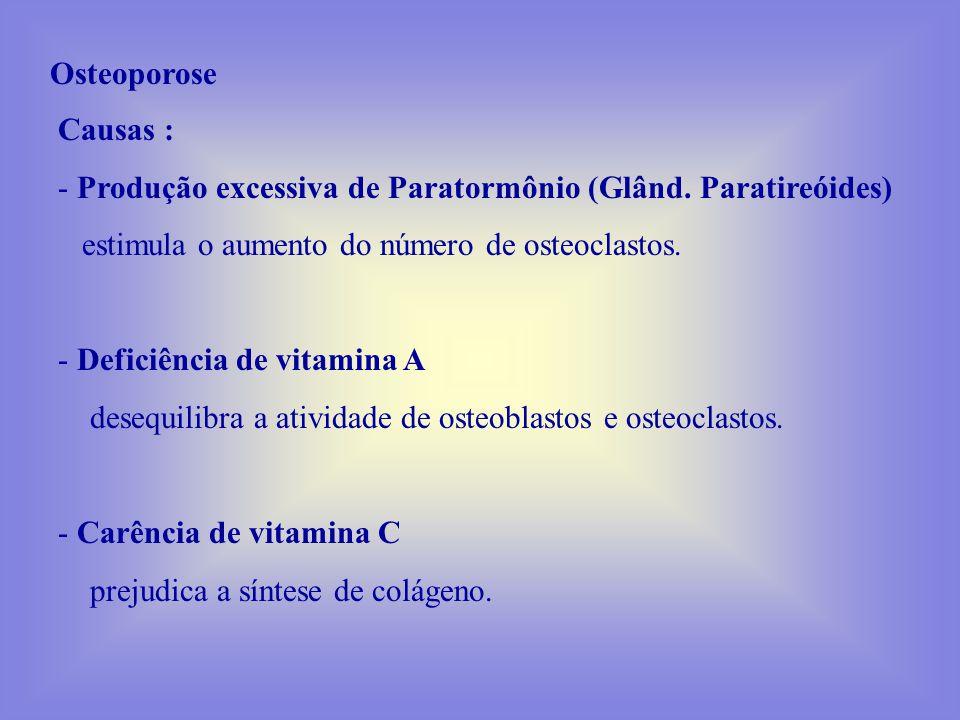 Osteoporose Causas : Produção excessiva de Paratormônio (Glând. Paratireóides) estimula o aumento do número de osteoclastos.