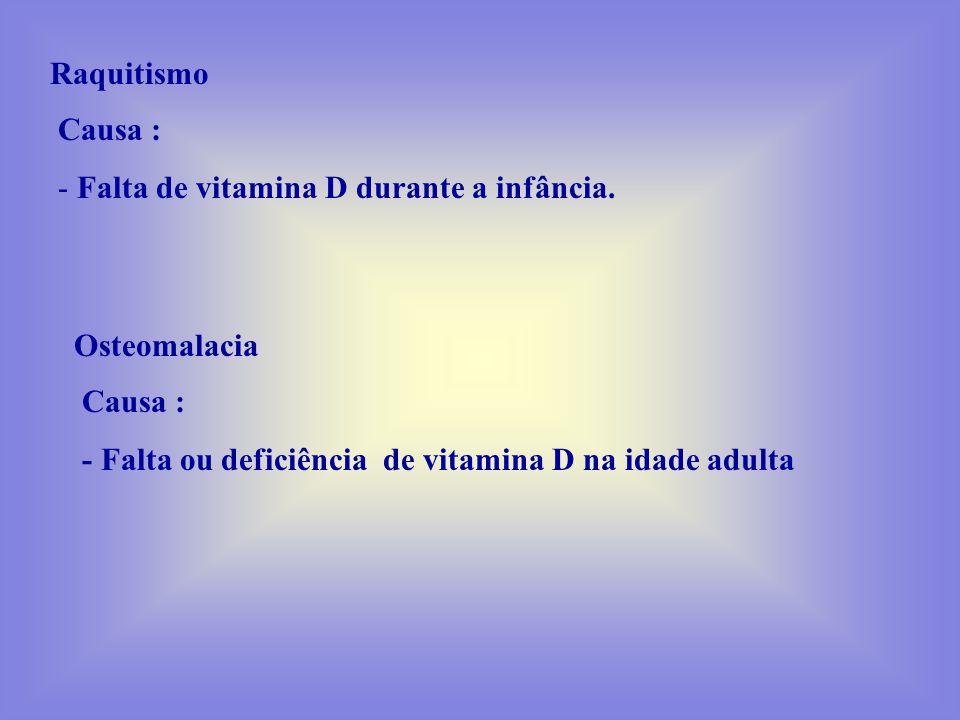 Raquitismo Causa : Falta de vitamina D durante a infância.