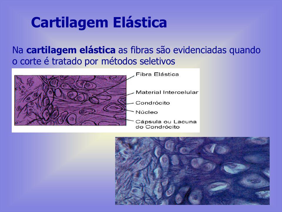 Cartilagem Elástica Na cartilagem elástica as fibras são evidenciadas quando o corte é tratado por métodos seletivos.