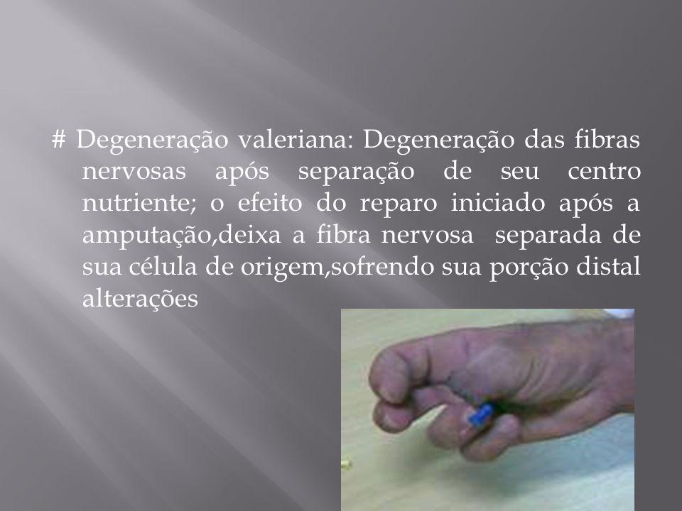 # Degeneração valeriana: Degeneração das fibras nervosas após separação de seu centro nutriente; o efeito do reparo iniciado após a amputação,deixa a fibra nervosa separada de sua célula de origem,sofrendo sua porção distal alterações