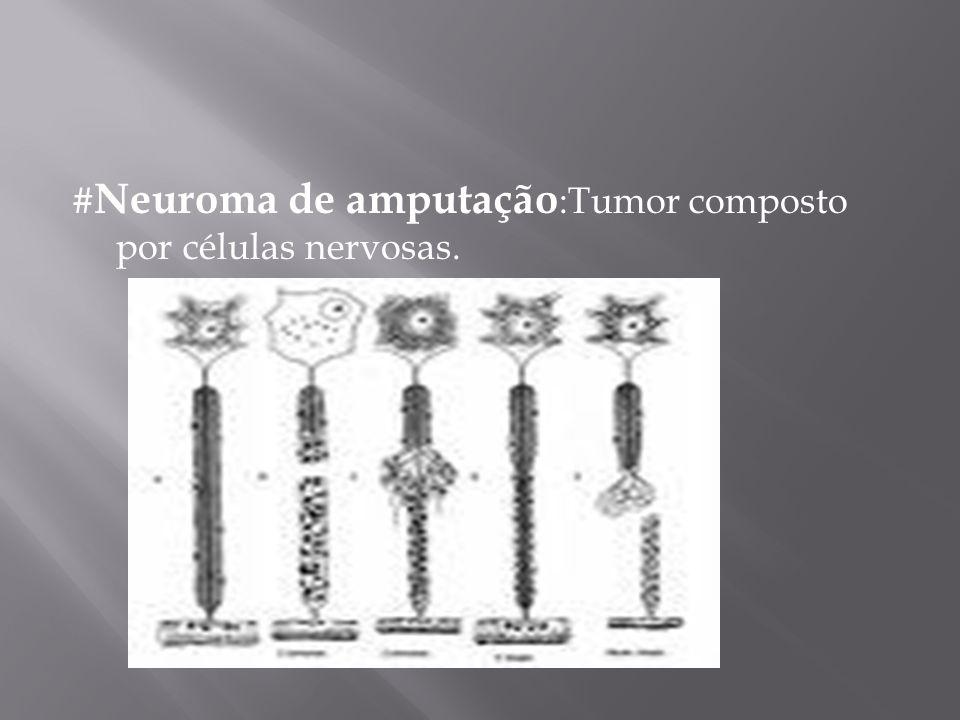 #Neuroma de amputação:Tumor composto por células nervosas.