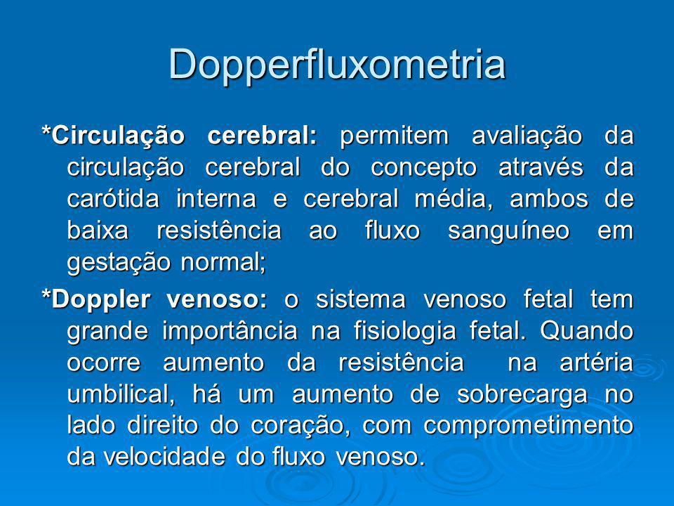 Dopperfluxometria